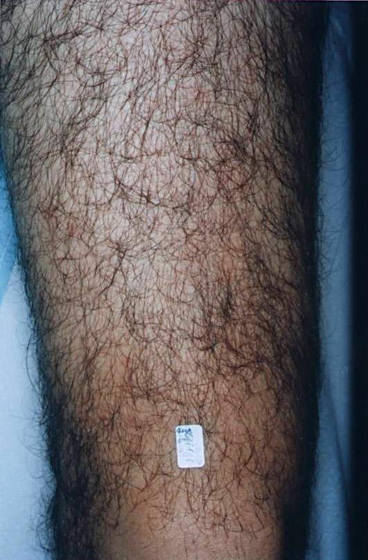 Bein vor der Behandlung