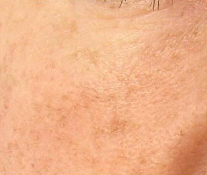 Hautbildverbesserung_nach_der_ersten_Behandlung1