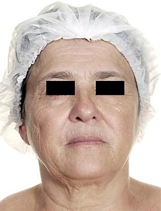 Hautverjungung_nachher