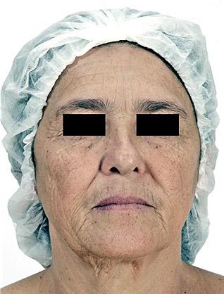 Hautverjungung_vorher