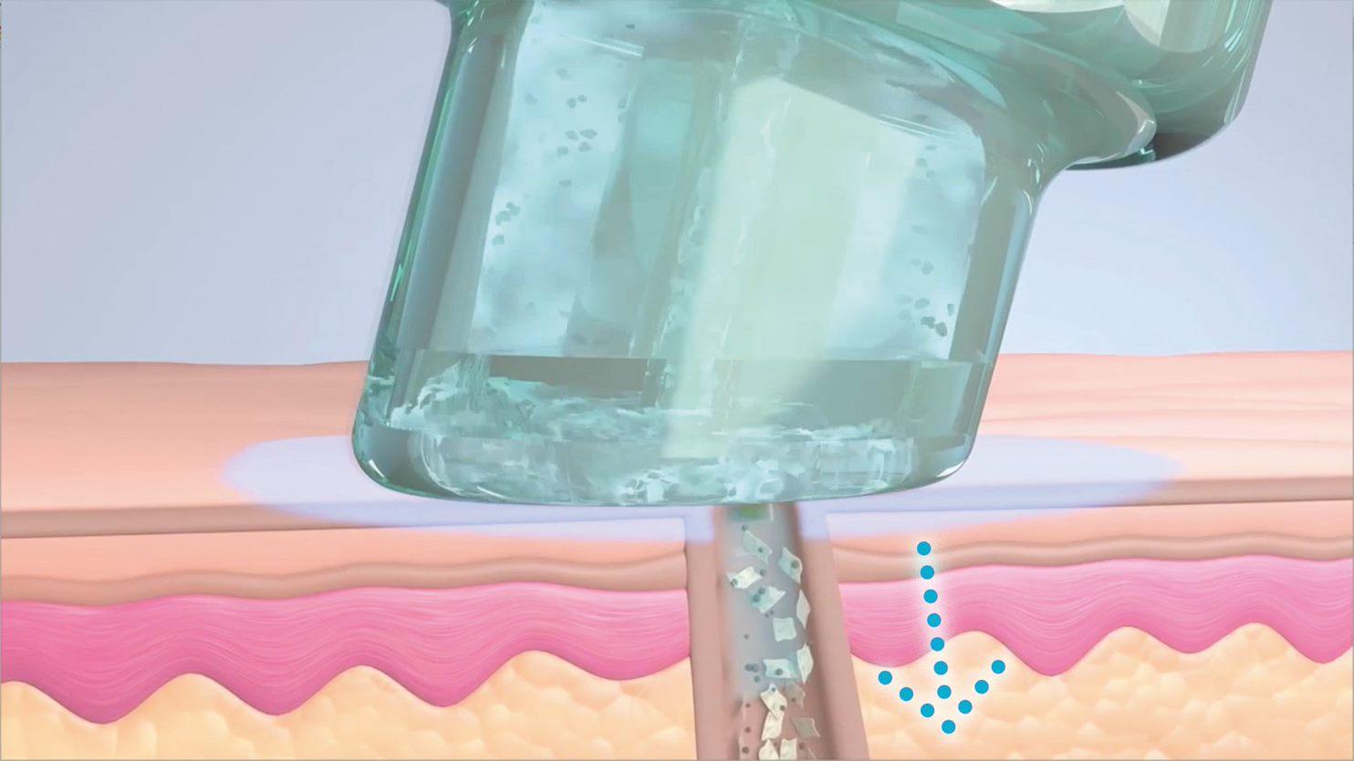 Hydrafacial - Behandlung - Schritt 2 - Glysal TM-Säurepeeling